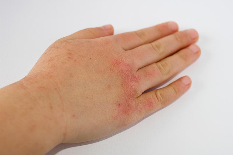 小麦アレルギー 肌荒れ